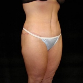 After Photo - Lower Body Lift - Case #2843 - Posterior View