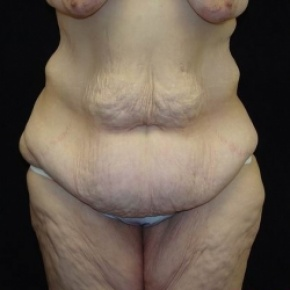 Before Photo - Lower Body Lift - Case #2844 - Lower Body Lift / Inner Thigh Lift - Frontal View