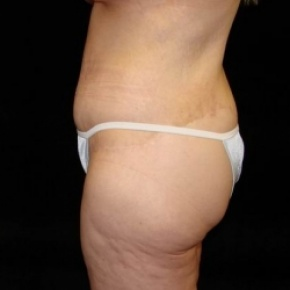 After Photo - Lower Body Lift - Case #2844 - Lower Body Lift / Inner Thigh Lift - Lateral View