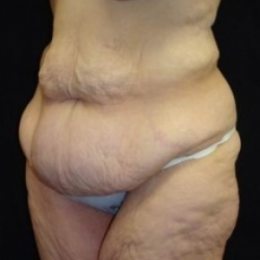 Before Photo - Lower Body Lift - Case #2844 - Lower Body Lift / Inner Thigh Lift - Posterior Oblique View