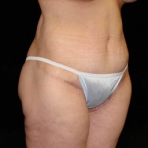 After Photo - Lower Body Lift - Case #2844 - Lower Body Lift / Inner Thigh Lift - Posterior View