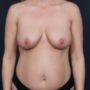 Before Photo - Nonsurgical Fat Reduction - Case #2697 - Mommy Makeover - Frontal View