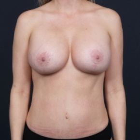 After Photo - Nonsurgical Fat Reduction - Case #2697 - Mommy Makeover - Frontal View