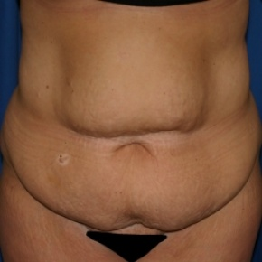 Before Photo - Nonsurgical Fat Reduction - Case #2942 - Abdominoplasty and Liposuction of Flank - Frontal View