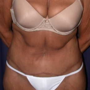 Nonsurgical Fat Reduction Body Contouring Overview