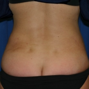 After Photo - Nonsurgical Fat Reduction - Case #2959 - Abdominoplasty and SAL flank - Posterior View