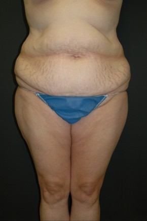 Before Photo - Nonsurgical Fat Reduction - Case #3488 - Circumferential Body Lift - Frontal View