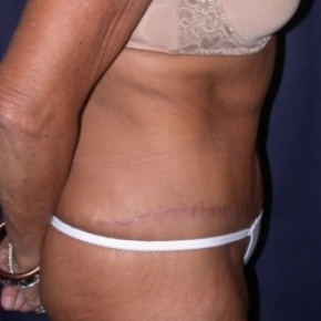After Photo - Nonsurgical Fat Reduction - Case #2524 - Tummy Tuck/LipoAbdominoplasty - Lateral View