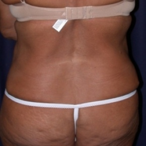 After Photo - Nonsurgical Fat Reduction - Case #2524 - Tummy Tuck/LipoAbdominoplasty - Posterior View