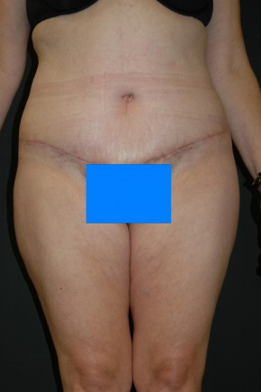 After Photo - Nonsurgical Fat Reduction - Case #3488 - Circumferential Body Lift - Frontal View