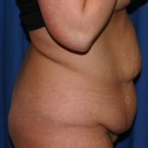 Before Photo - Nonsurgical Fat Reduction - Case #2942 - Abdominoplasty and Liposuction of Flank - Lateral View