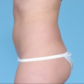 After Photo - Nonsurgical Fat Reduction - Case #2627 - Non-Surgical - Lateral View