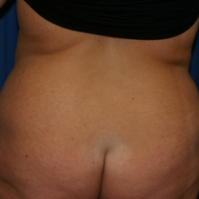 Before Photo - Nonsurgical Fat Reduction - Case #2942 - Abdominoplasty and Liposuction of Flank - Posterior View