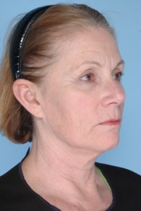 Before Photo - Nonsurgical Skin Tightening - Case #2920 - Ulthera - Oblique View