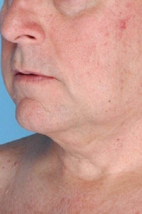 After Photo - Nonsurgical Skin Tightening - Case #2635 - Non-Surgical Focused Ultrasound - Oblique View