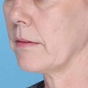 Before Photo - Nonsurgical Skin Tightening - Case #2638 - Non-Surgical Focused Ultrasound - Oblique View