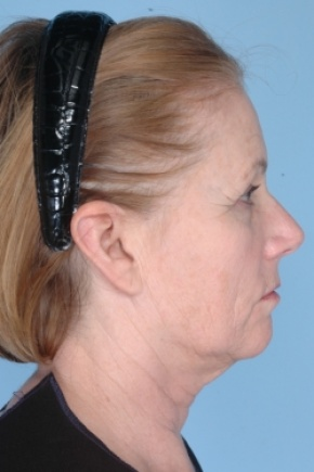 Before Photo - Nonsurgical Skin Tightening - Case #2920 - Ulthera - Lateral View