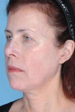 After Photo - Nonsurgical Skin Tightening - Case #2633 - Non-Surgical Focused Ultrasound - Frontal View
