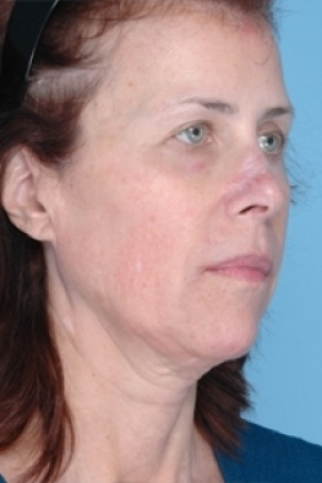 Before Photo - Nonsurgical Skin Tightening - Case #2633 - Non-Surgical Focused Ultrasound - Oblique View