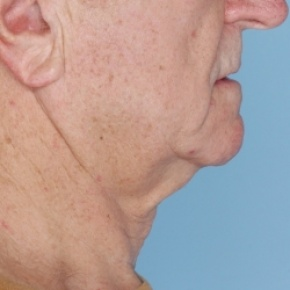 Before Photo - Nonsurgical Skin Tightening - Case #2921 - Ulthera - Lateral View