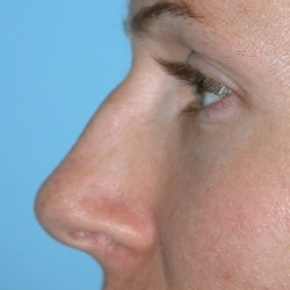 Before Photo - Nose Surgery - Case #2621 - Rhinoplasty - Oblique View