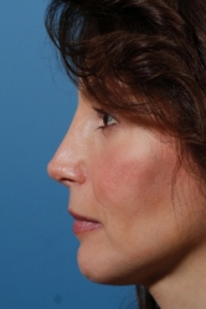 After Photo - Nose Surgery - Case #2560 - Revision Rhinoplasty - Lateral View