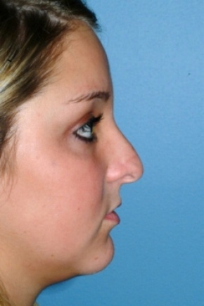 Before Photo - Nose Surgery - Case #2561 - Primary Rhinoplasty - Lateral View