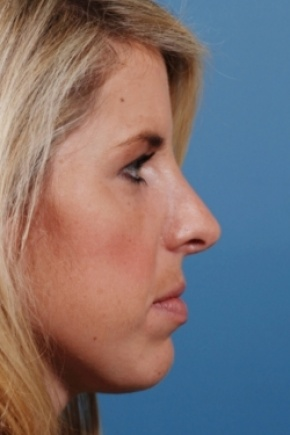 After Photo - Nose Surgery - Case #2562 - Primary Rhinoplasty - Lateral View