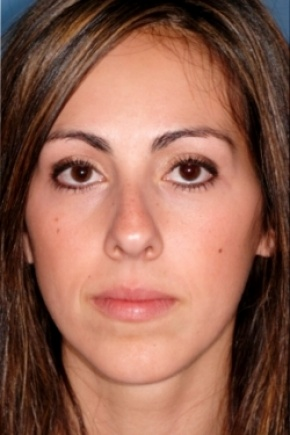 Before Photo - Nose Surgery - Case #2563 - Primary Rhinoplasty - Frontal View