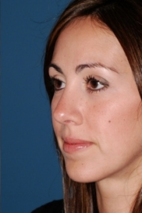 After Photo - Nose Surgery - Case #2563 - Primary Rhinoplasty - Oblique View