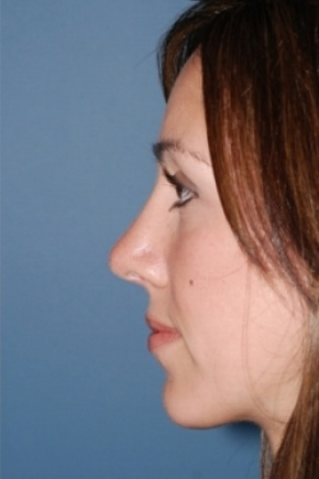 After Photo - Nose Surgery - Case #2563 - Primary Rhinoplasty - Lateral View