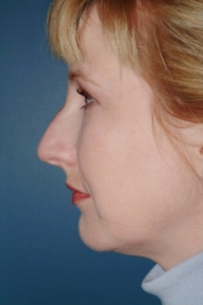 Before Photo - Nose Surgery - Case #2564 - Primary Rhinoplasty - Lateral View