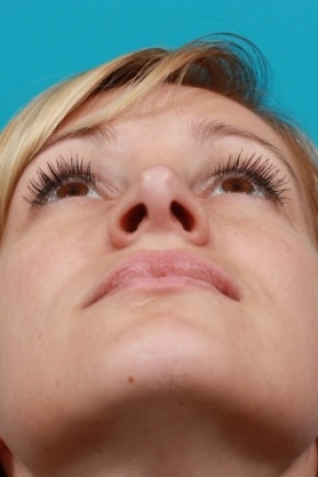 After Photo - Nose Surgery - Case #2504 - Rhinoplasty (Nose Reshaping) - Worm's Eye View