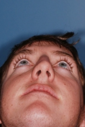 Before Photo - Nose Surgery - Case #2565 - Primary Rhinoplasty - Worm's Eye View