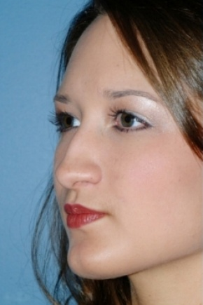 Before Photo - Nose Surgery - Case #2567 - Primary Rhinoplasty - Oblique View