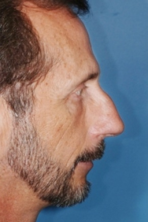 Before Photo - Nose Surgery - Case #2569 - Primary Rhinoplasty - Lateral View