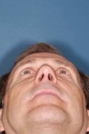 After Photo - Nose Surgery - Case #2569 - Primary Rhinoplasty - Worm's Eye View