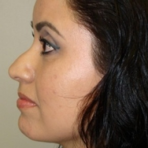 Before Photo - Nose Surgery - Case #2579 - Rhinoplasty - Lateral View