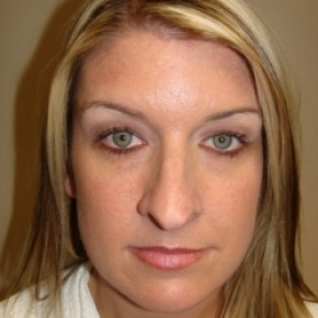Before Photo - Nose Surgery - Case #2679 - Rhinoplasty - Frontal View
