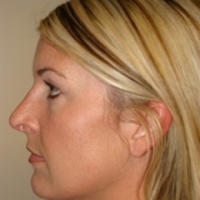 After Photo - Nose Surgery - Case #2679 - Rhinoplasty - Lateral View
