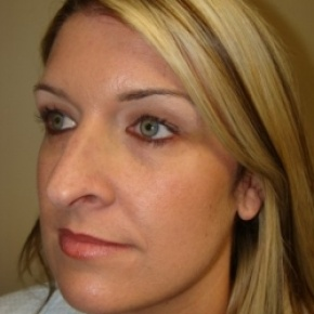 Before Photo - Nose Surgery - Case #2679 - Rhinoplasty - Posterior Oblique View