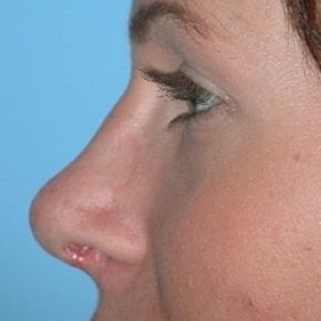 After Photo - Nose Surgery - Case #2621 - Rhinoplasty - Oblique View