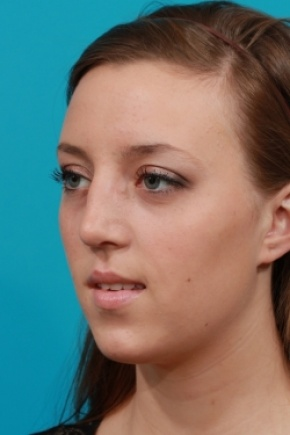 After Photo - Nose Surgery - Case #2503 - Rhinoplasty (Nose Reshaping) - Oblique View