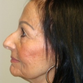 Before Photo - Nose Surgery - Case #2681 - Rhinoplasty - Posterior View