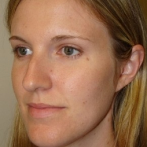 Before Photo - Nose Surgery - Case #2682 - Rhinoplasty - Oblique View