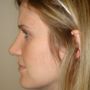 After Photo - Nose Surgery - Case #2682 - Rhinoplasty - Posterior View