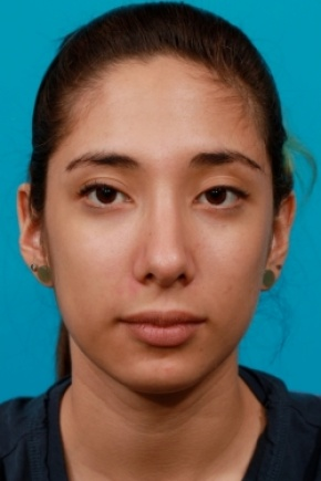 After Photo - Nose Surgery - Case #2506 - Rhinoplasty (Nose Reshaping) - Frontal View