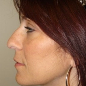 Before Photo - Nose Surgery - Case #2683 - Rhinoplasty - Posterior View