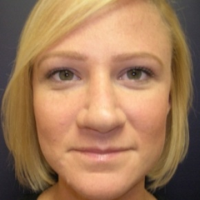 After Photo - Nose Surgery - Case #2752 - Rhinoplasty - Frontal View