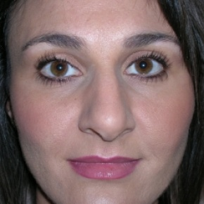 Before Photo - Nose Surgery - Case #2754 - Rhinoplasty - Frontal View